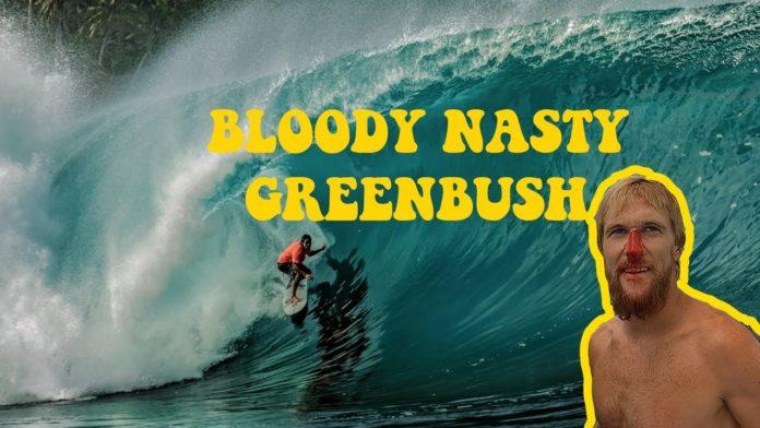Nic Von Rupp em Greenbush XXL: surfista português pega um dos maiores swells de todos os tempos no pico tubular. Assista ao vídeo